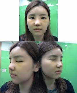3 hari sesudah operasi plastik hidung Korea
