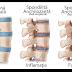 Coxartroză - simptome și tratament