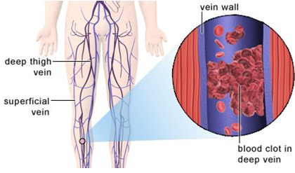 Vein Thrombosis Illustration