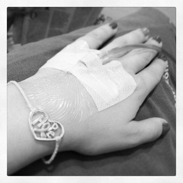 Los pies después de la operación de la desaparición varikoza