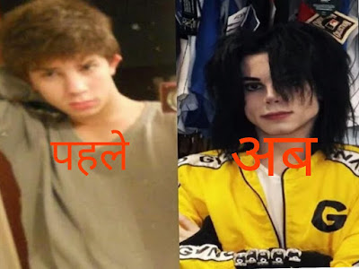 The boy has done 11 times plastic surgery, spent 21 lakhs to look like Michael Jackson