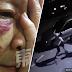 (Video) Warga emas cedera dibelasah perompak ketika keluar bersenam awal pagi