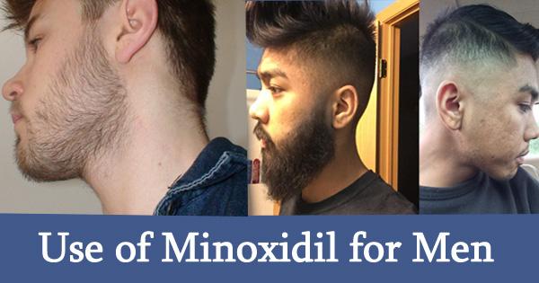 Use of Minoxidil for Men