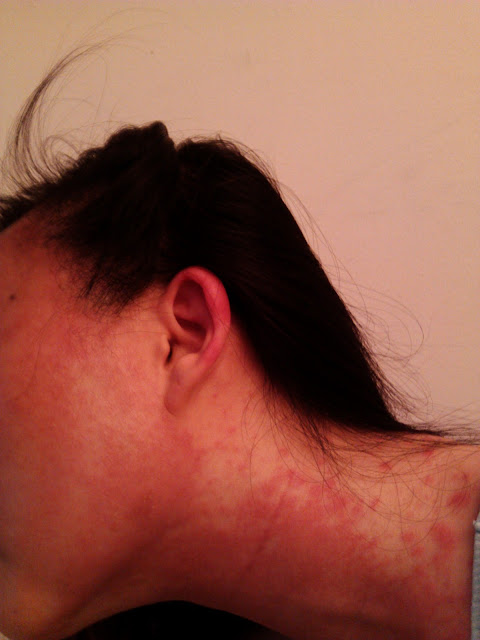 Ear swelling and facial hive