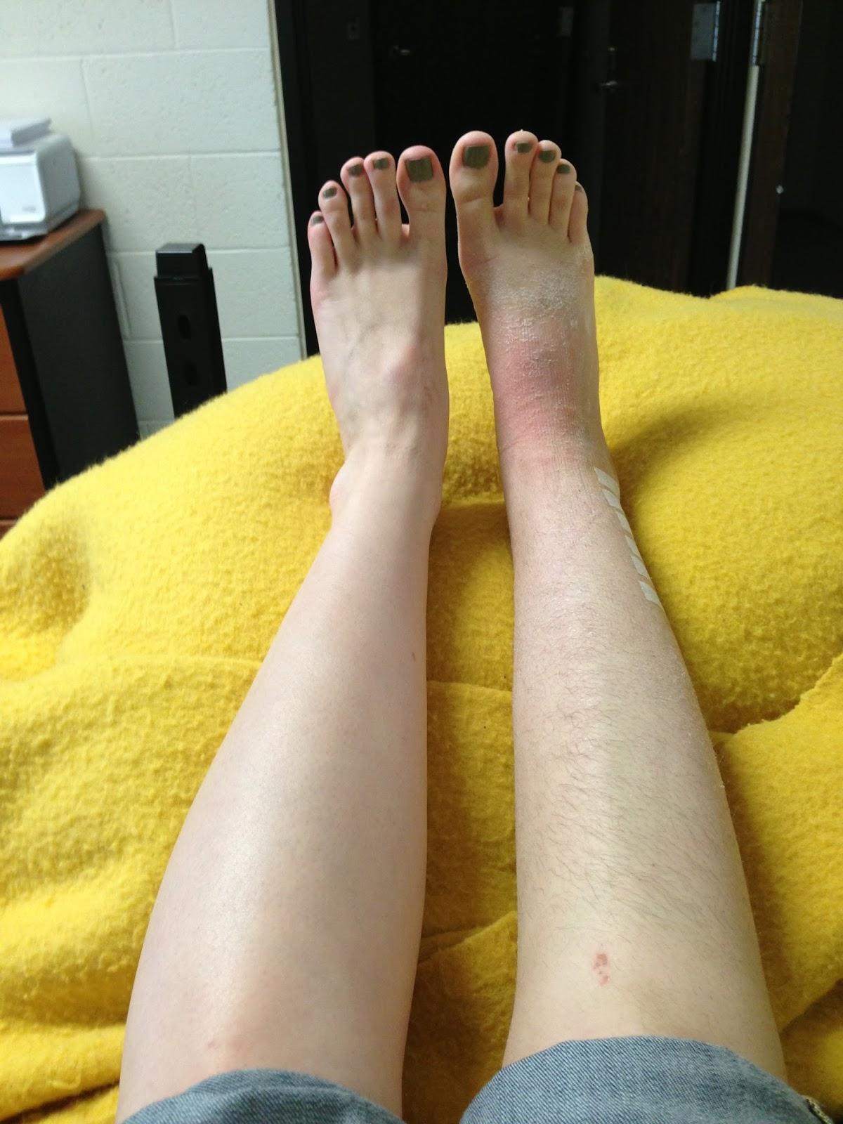 Broken Ankle After Cast Related Keywords & Suggestions - Broken
