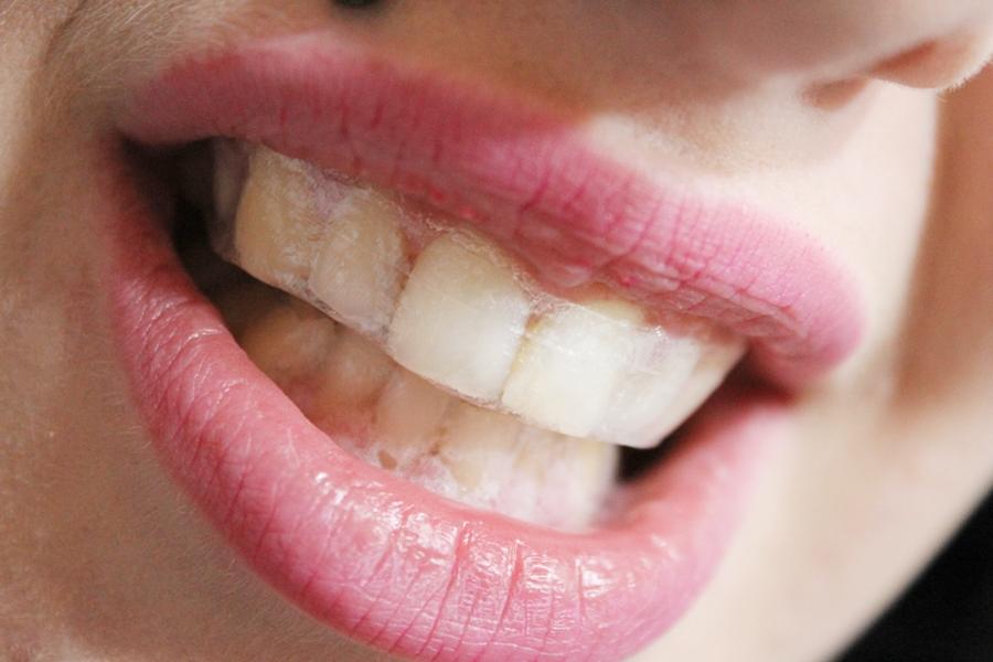 Zubna pasta za osetljive desni