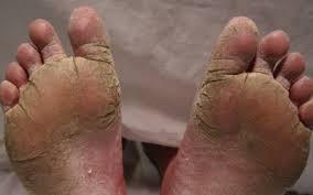 salep eksim pada kaki