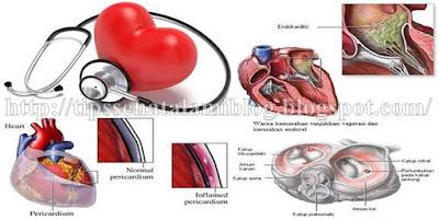 Obat Tradisional Endokarditis Infeksi Paling Mujarab