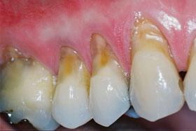 Tag Clareamento Dental Caseiro Com Bicarbonato E Agua Oxigenada