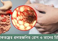 dexatrim felülvizsgálja a fogyást