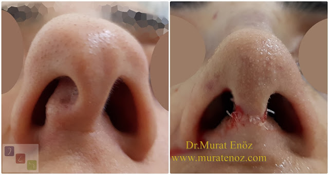 Twisted nose - Crooked nose surgery - Scoliotic nose - Crooked nose - Treatment of twisted nose  - Treatment of crooked nose - Challenges in treatment of deviated nose - Crooked nose aesthetic surgery in Istanbul - Twisted nose treatment in Istanbul - Rhinoplasty in Istanbul - Nose job in Istanbul