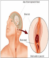 Ciri-Ciri Penyempitan Pembuluh Darah Di Otak