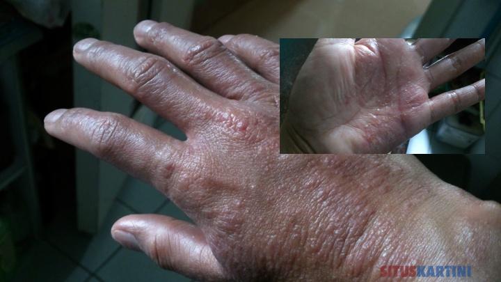 TIPS : 9 Cara Ampuh Untuk Kulit Tangan Retak,Kering Bahkan Berdarah Bagi Kamu