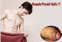 Obat Sipilis Paling Ampuh Untuk Pria Dewasa