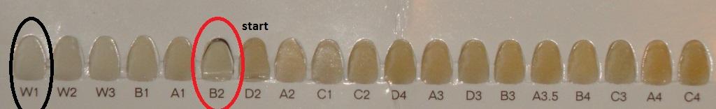 wybielanie zębów metodą nakładkową opalescence