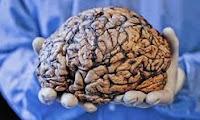 beyin kaç kilo çocuk beyni kaç kilo çocuk beyni kadın beyni erkek beyni ağırlığı