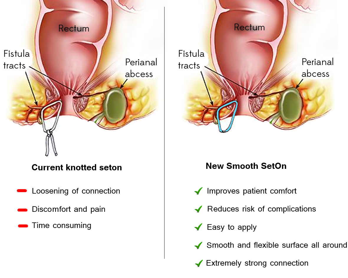 Home remedies abscess anal