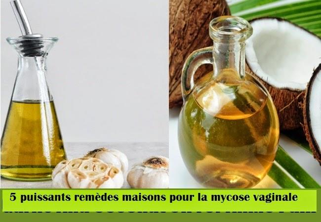Favori Top remèdes maison pour la mycose vaginale ~ Protège ta santé VB96