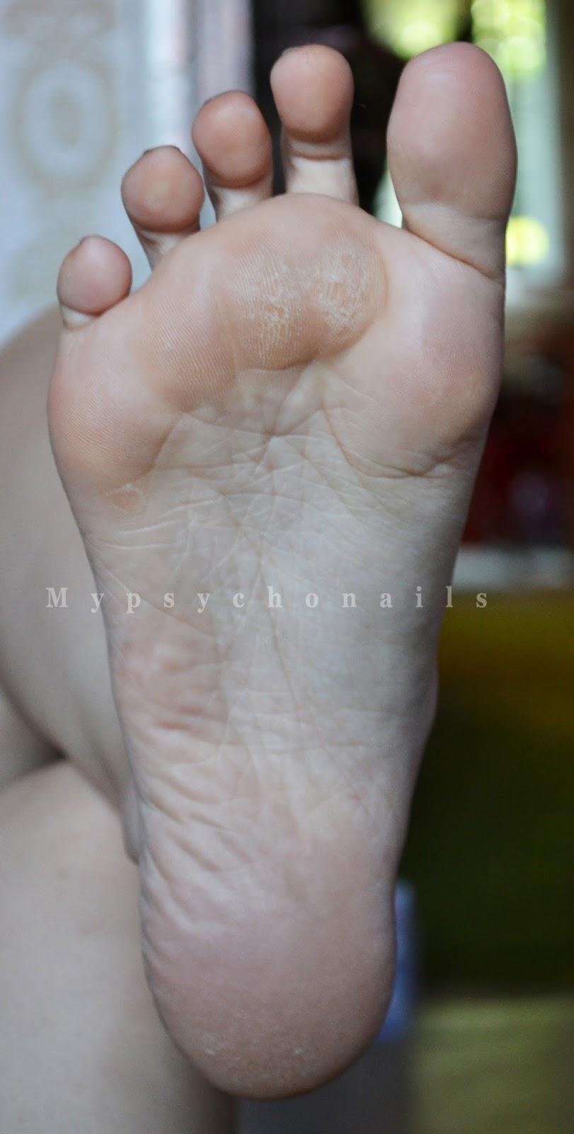 varicoză pe picioarele mele la cine să contacteze