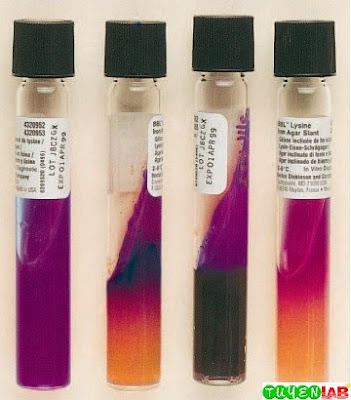 Lysine iron agar reactions. Left to right: K/K (positive decarboxylation without H2S), K/A H2S (negative decarboxylation with H2S), K/K H2S (positive decarboxylation with H2S), R/Y (negative decarboxylation, positive deamination without H2S).