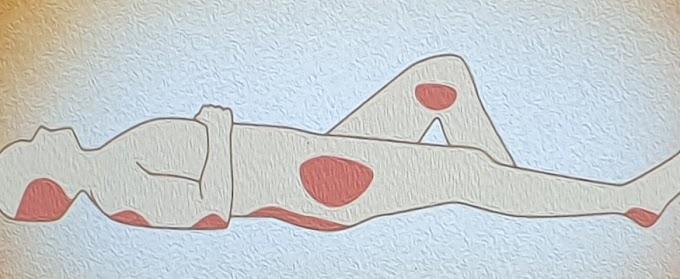 Yatak Yaraları Nasıl Tedavi Edilir.Tedavi Yöntemleri nelerdir?