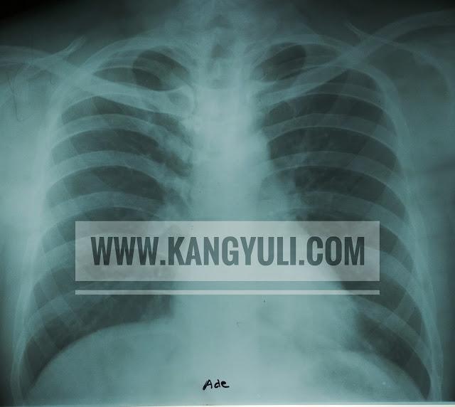 biaya rontgen thorax