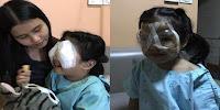 Akibat Anak Kecanduan Bermain Hp, Balita 4 Tahun Ini Harus Jalani Operasi Mata Karena Derita Gangguan Ini! Teguran buat Para Orang Tua Milenial nih!