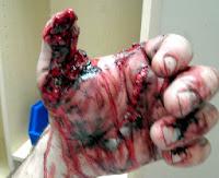 blessure poudre noire