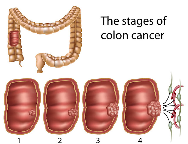 Doctors Are In Shock: This Kills 93% Of Colon Cancer In Just 2 Days