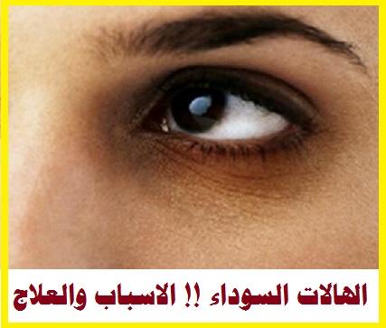 الهالات السوداء حول العينين !! السواد حول العين الاسباب والعلاج
