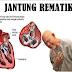 Definisi Penyebab Dan Gejala Serta Pengobatan Penyakit Demam Rematik atau Jantung Rematik Menurut Ilmu Kedokteran