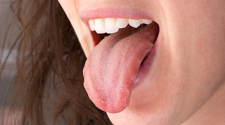 Treating Wounds on the Tongue with Natural Materials