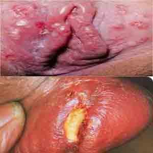 https://de-natur-indonesia.blogspot.com/2017/09/penyebab-sifilis-atau-sipilis-gejala.html