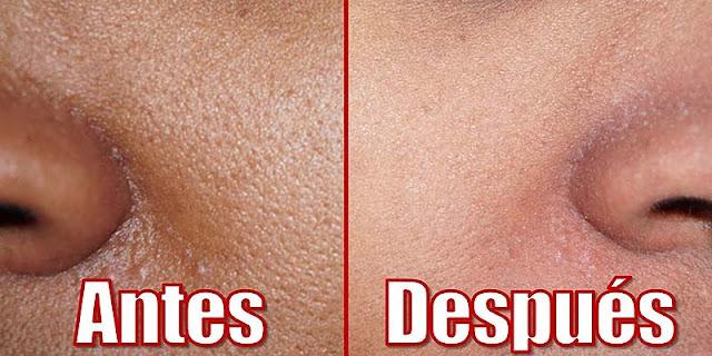 Aprenda a cerrar los poros de la cara con estos 6 remedios caseros