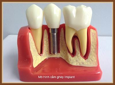 trồng răng cấm bằng phương pháp cấy ghép Implant -7