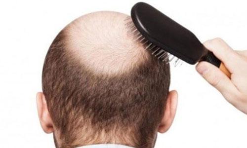 Cara Menumbuhkan Rambut Botak dengan Cepat dalam 1 Minggu