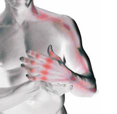 artritis-sintomas-guia-reumatoide