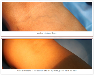 Get Rid of Blue Bulging Varicose Veins with a Phlebectomy