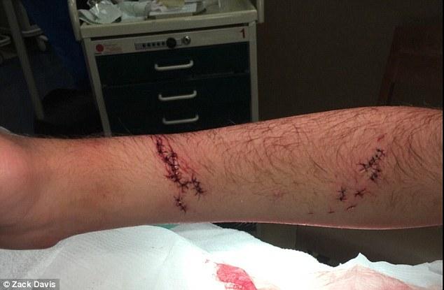 Le regalaron una pulsera antitiburon; la estrenó y lo mordió uno
