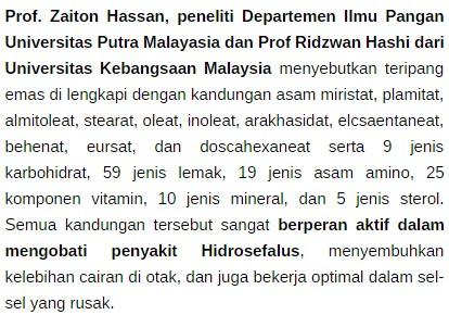 Penyakit Hidrosefalus, Penyebab, Gejala, Serta Bahaya Hidrosefalus