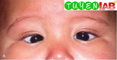 Congenital or infantile esotropia