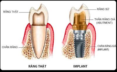 có nên cắm ghép răng implant không -14