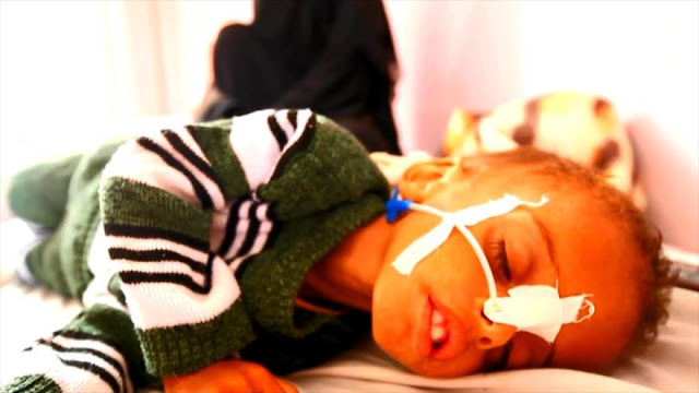 Yemen vive el peor brote de cólera en el mundo