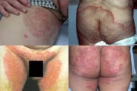 obat alami khusus gatal pada selangkangan dan bokong ampuh