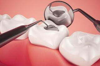 Trám răng lấy tủy giá bao nhiêu tiền?
