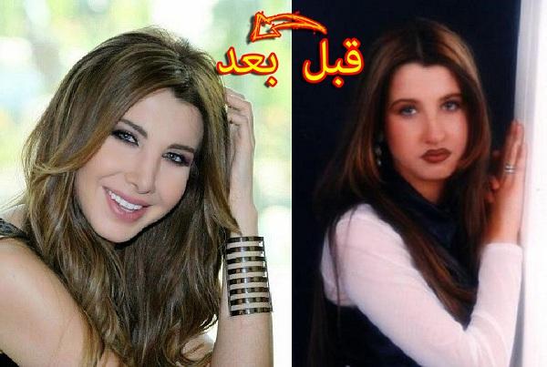 شاهد بالصور...الممثلاث العربيات قبل عملية التجميل !!!