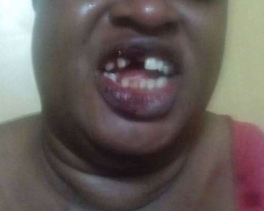 Man Blows off Teeth of a Prostitute During Sex for Refusing to Give Him as he Wants in Lagos