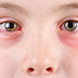 3 Reasons To Consider Using A Separate Under Eye Cream