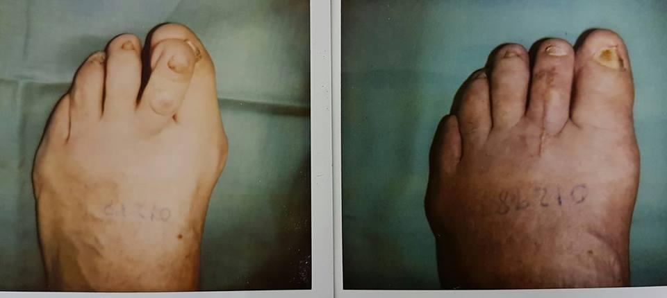 operacion de juanetes en chile