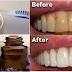 By Rubbing These Oils Onto Your Teeth And Gums You Will Never Go To You Dentist Again